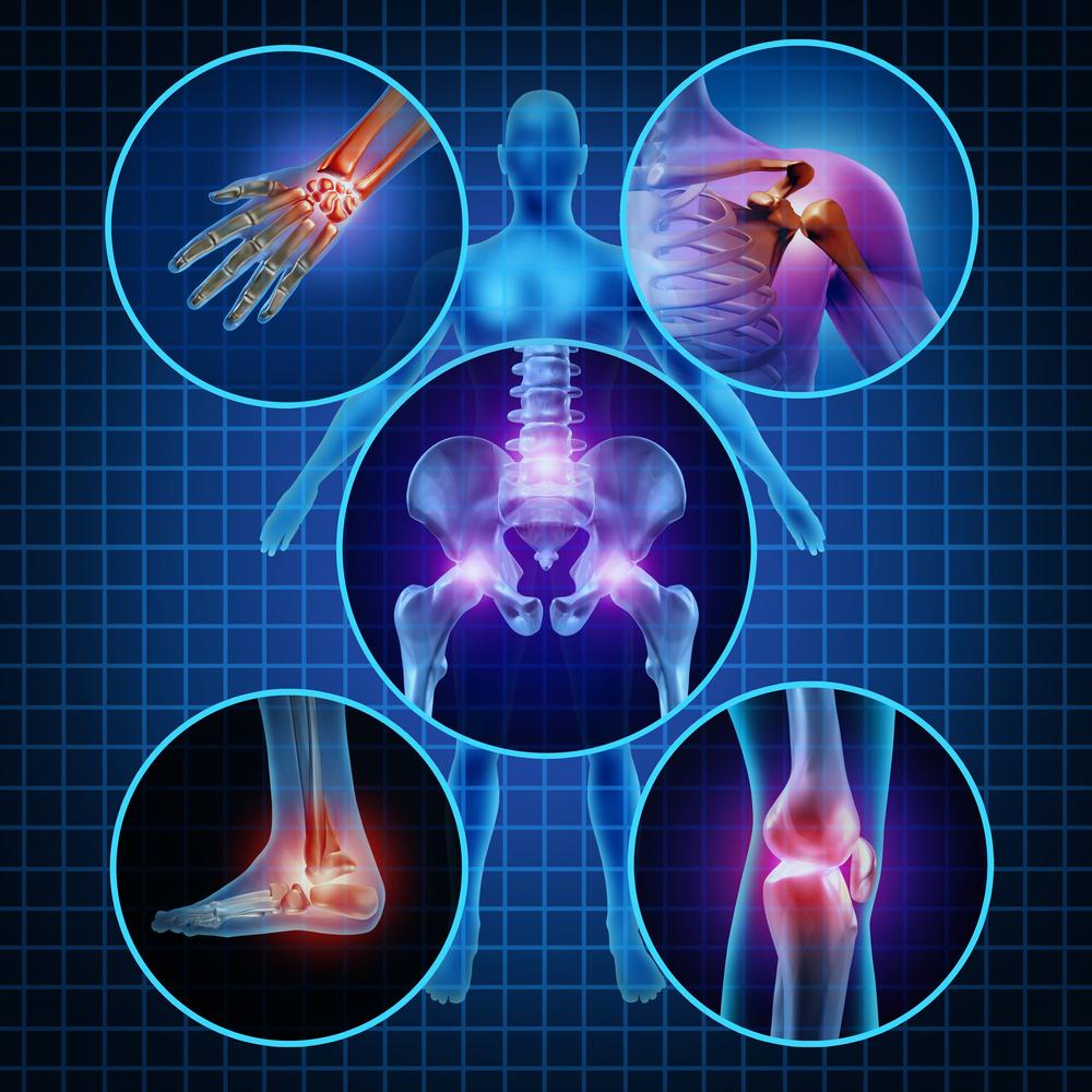 arthritis niche