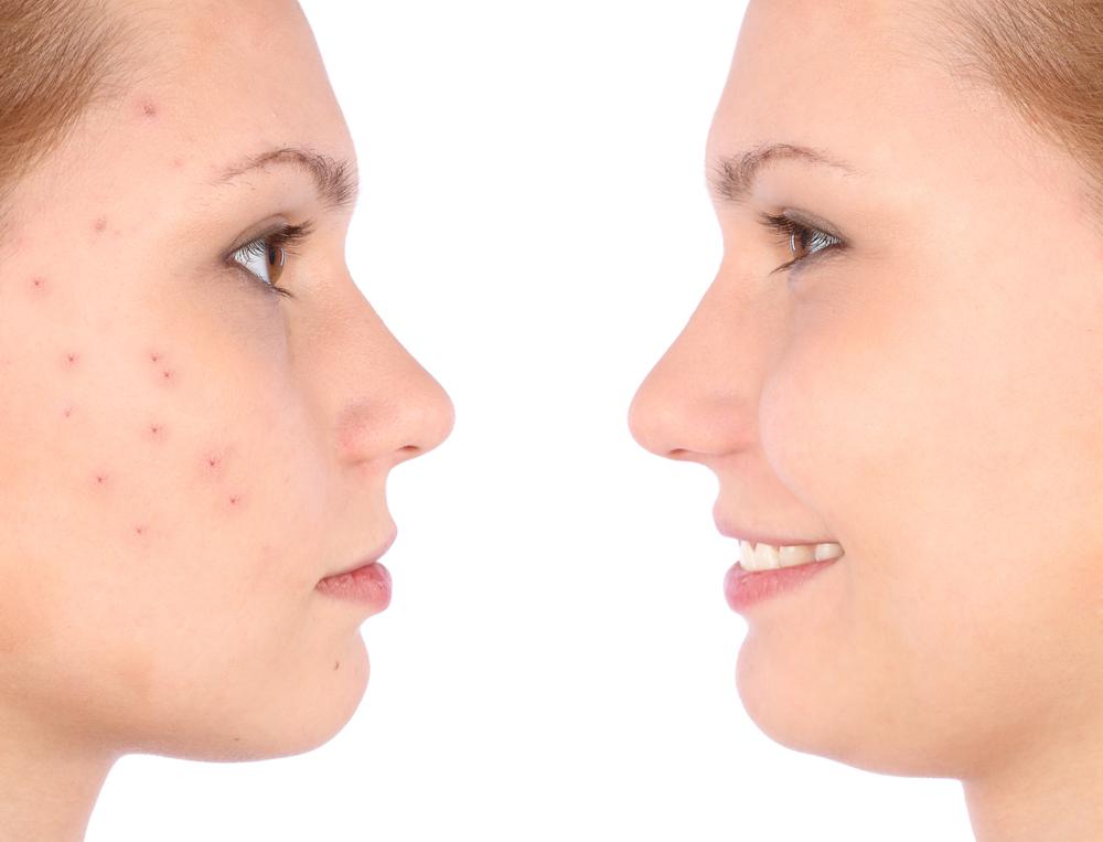 skin condition niche